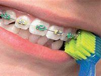 Curaprox 5460 Ortho brosse à dents